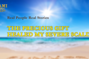 A Precious Gift Healed My Severe Scald